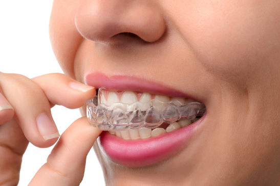 Aligners dentaires
